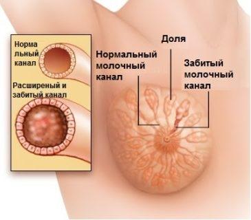 болит грудь и температура 37