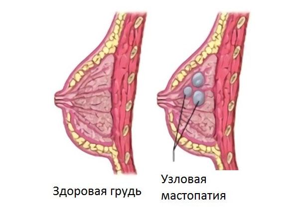болит грудная железа при прикосновении