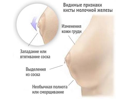 уплотнение в молочной железе болит при нажатии