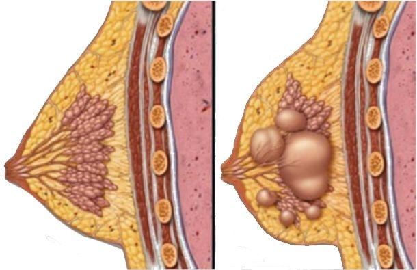 дисплазия молочной железы