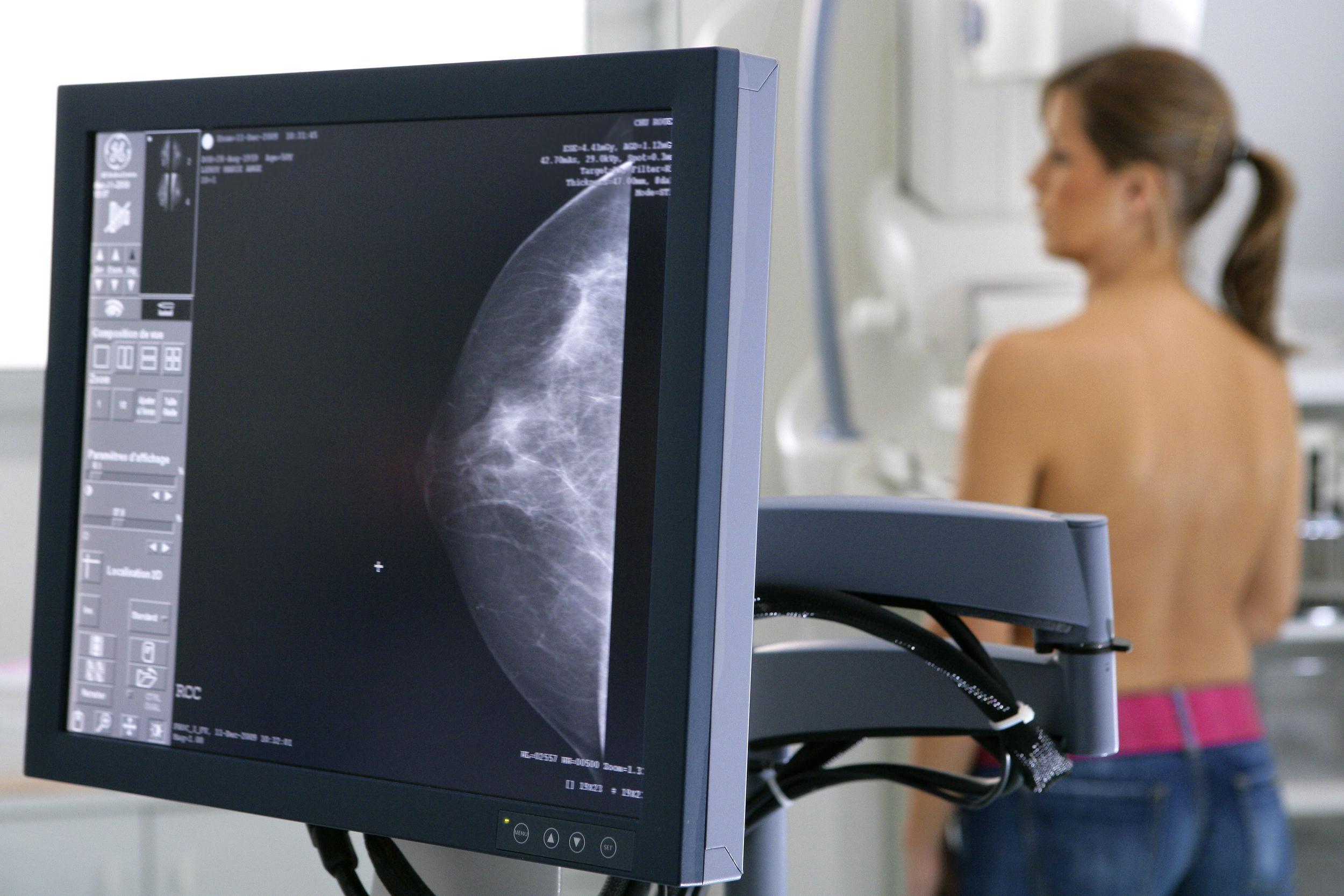 на какой день цикла лучше делать маммографию