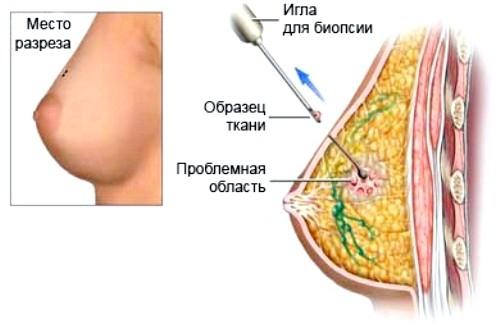 результаты биопсии молочной железы расшифровка