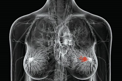 что показывает биопсия молочной железы