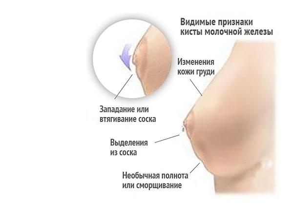 выделения из молочных желез