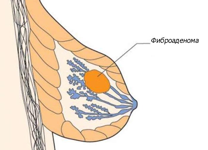 фиброаденома: лечение народными методами