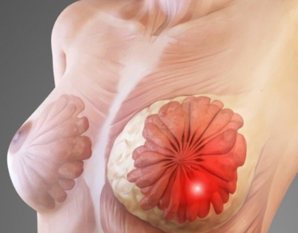 Чем полезен секс рак груди прощения