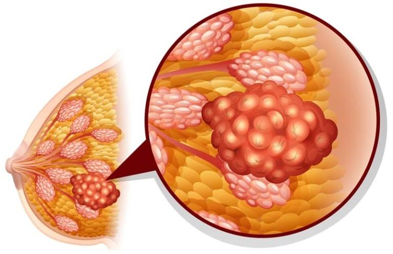 аденоз молочных желез