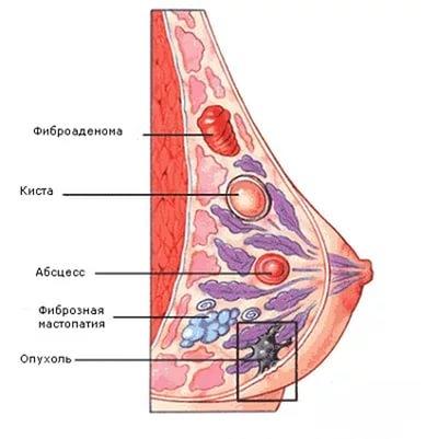 фиброз молочной железы