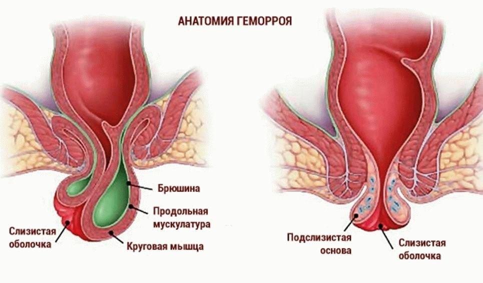 чем лечить геморрой при грудном вкармливании