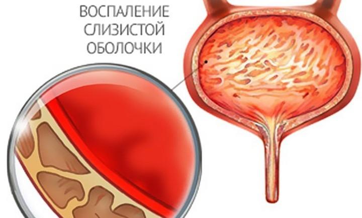 masturbatsiya-polezna-dlya-muzhchin