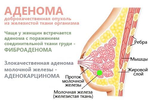 аденома молочной железы