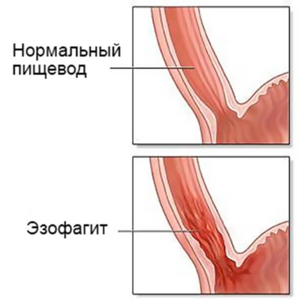 боль в правой грудине у женщин