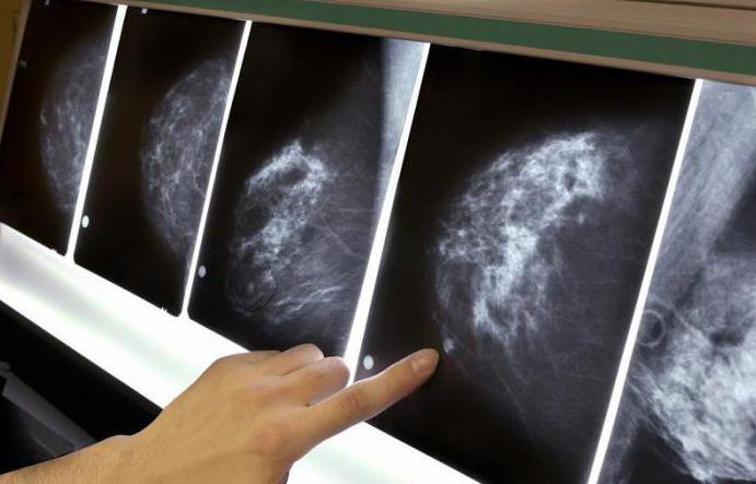 что такое маммография