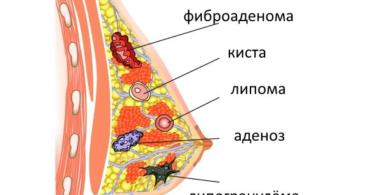 доброкачественная опухоль груди