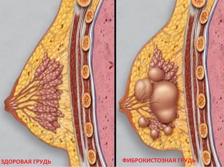 Диета при фиброзно кистозная мастопатия молочных желез