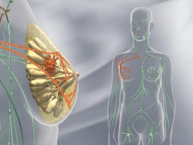 Диагностика и лечения рака молочной железы