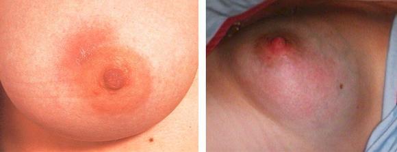 красные пятна на груди