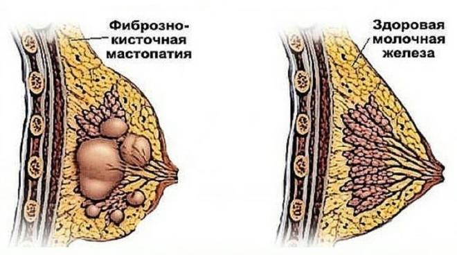 лечение мастопатии у женщин