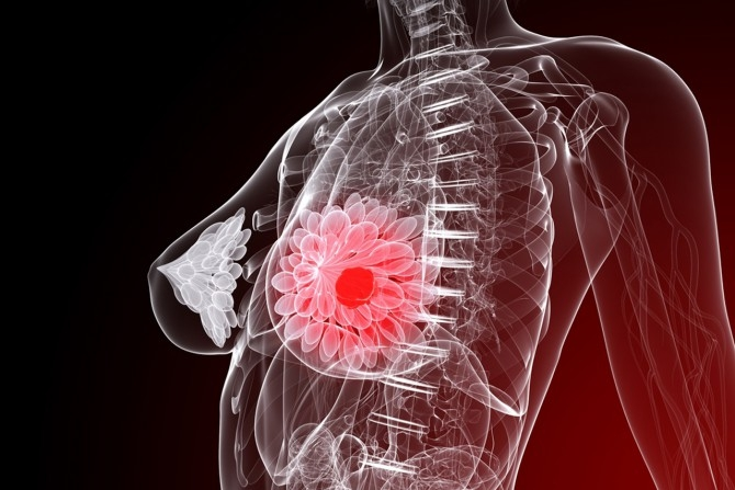 лечение рака молочной железы хирургическое