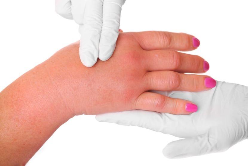 Лимфостаз руки после удаления молочной железы – лечение и прогноз
