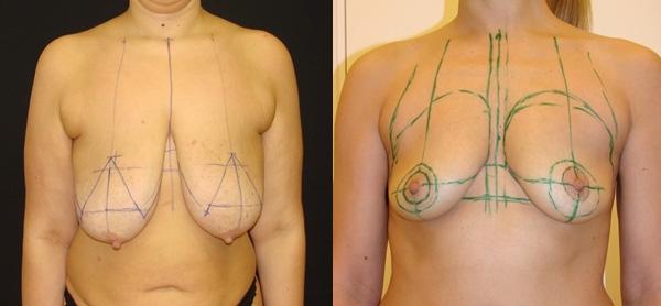 разметка груди
