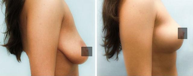 подтяжка груди