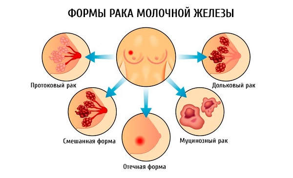 рак груди