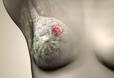 рак молочной железы 2 степени продолжительность жизни
