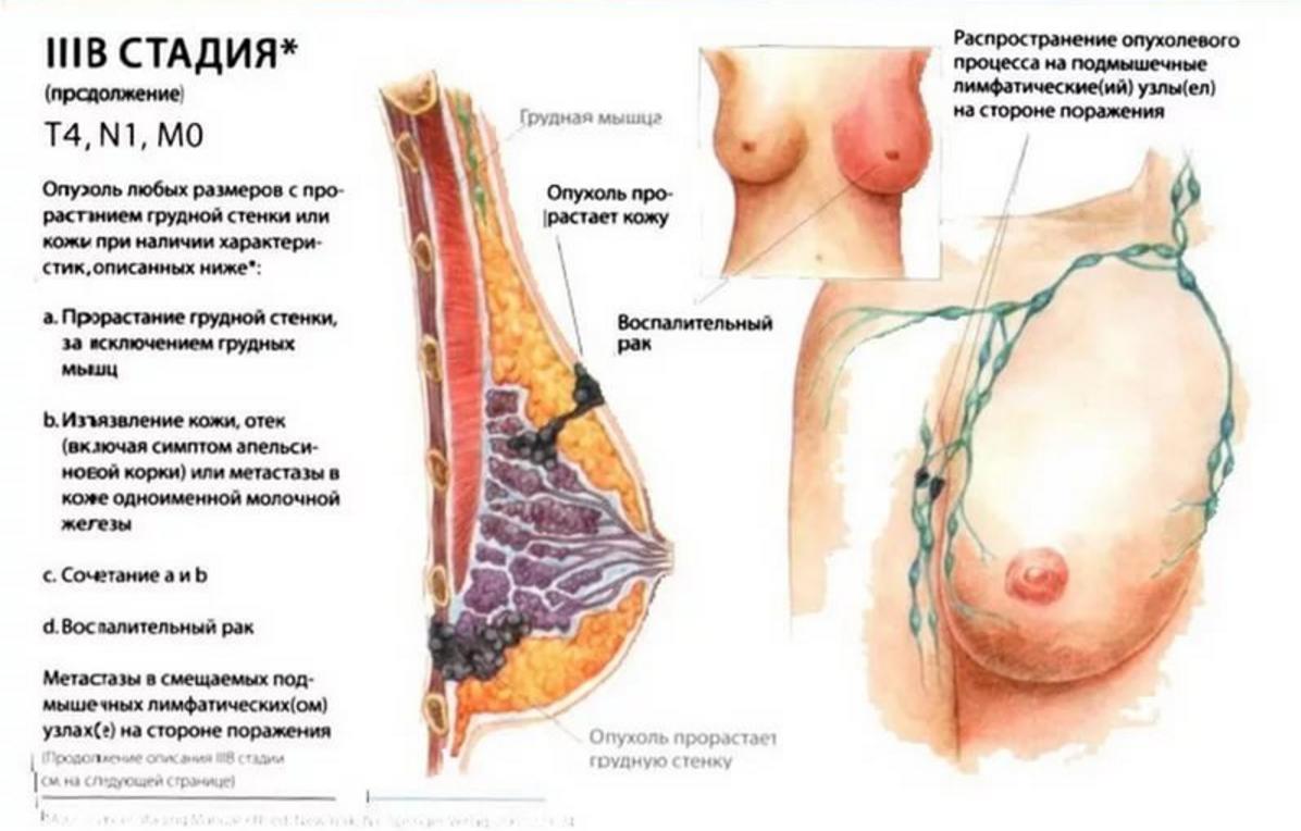 рак молочной железы 3 степени лечение после операции