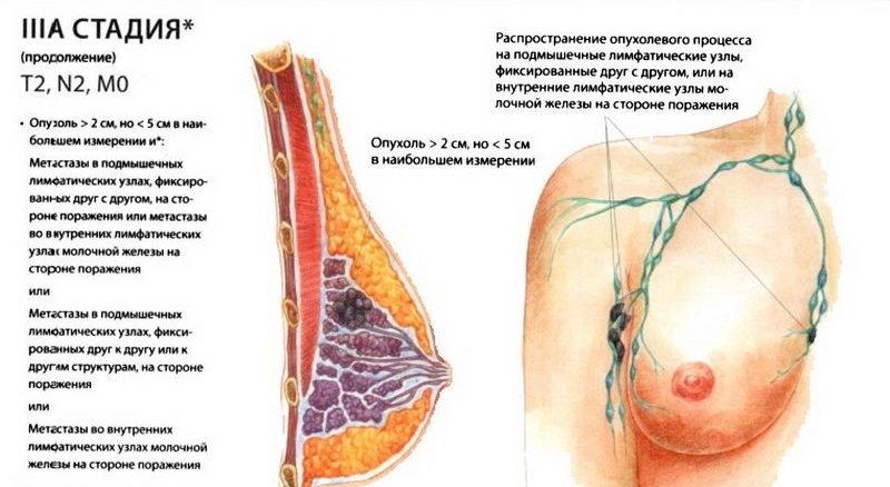 лечение после операции рака молочной железы 2 стадии