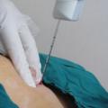 трепанобиопсия молочной железы