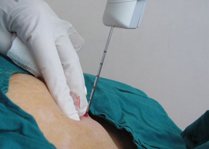 трепан биопсия