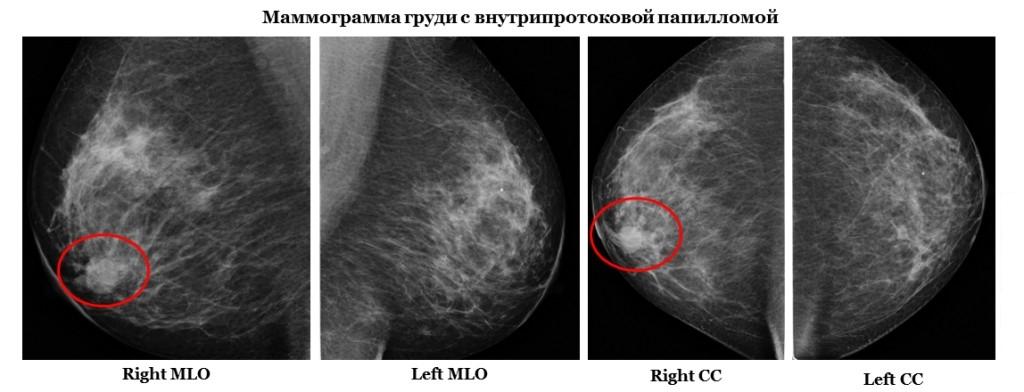 Контрастная маммография