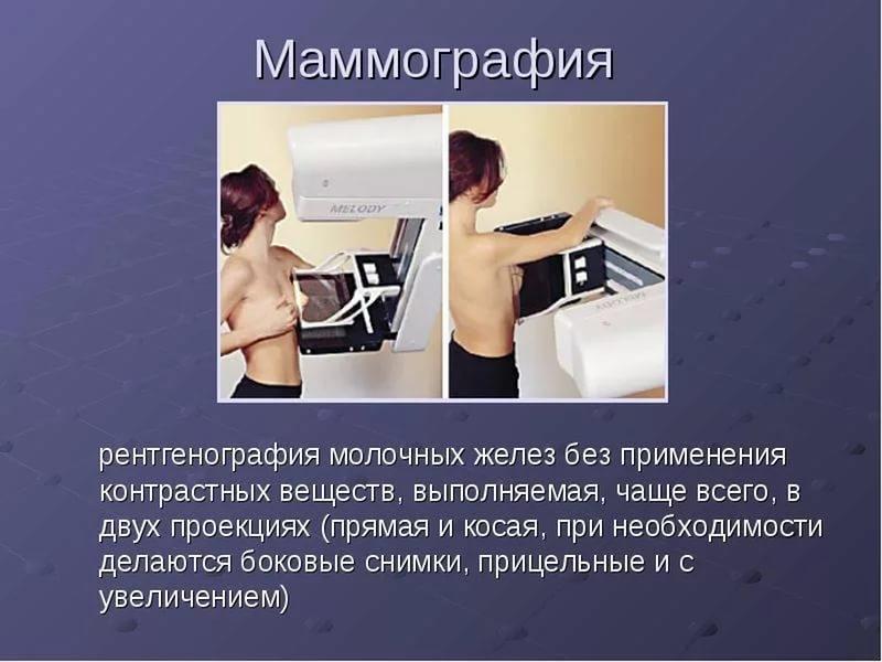 рентгенография молочных желез