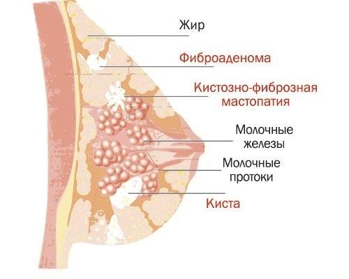 Диета при мастопатии молочных желез
