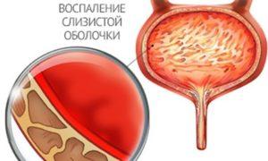 Как лечить цистит при грудном вскармливании