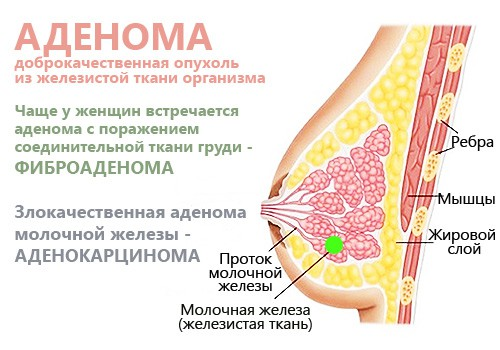 Аденома грудной железы у женщины