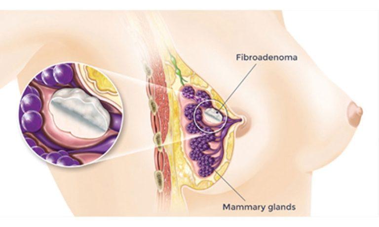 Кто удалял фиброаденому при беременности