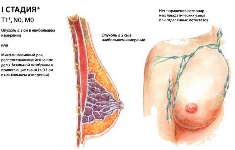 Призыва щитовидной железы тиреоидэктомии и на злокачественном уровне (радиойодабляция) после тиреоидэктомии
